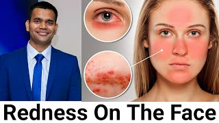 Redness On The Face - Rosacea, My Opinion And Natural Treatment