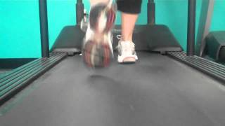 Over Pronation in Walking Right Side more than Left Side