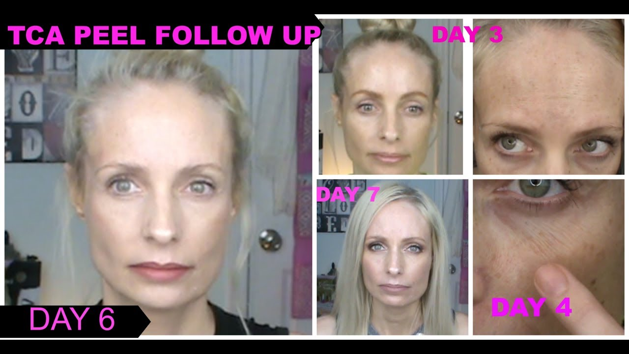 25% TCA PEEL | FOLLOW UP | ANTI AGING OVER 40 | TCA PEEL BEFORE AND AFTER