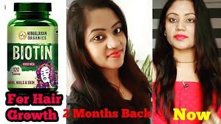 Biotin for Hair Growth ! Himalayan Organics Biotin 10000mcg for Hair Growth Tablets Review