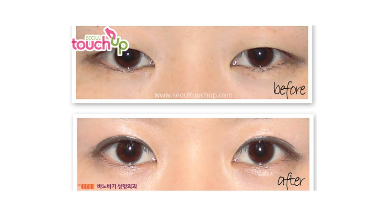 Best Korean Epicanthoplasty Amp Lateral Canthoplasty Before