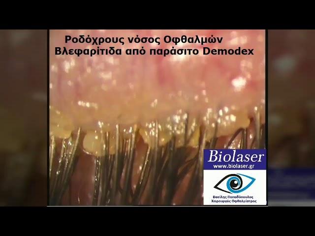 Βλεφαρίτις - BioLaser