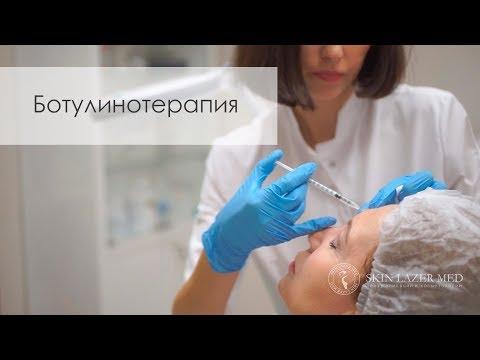 Ботулинотерапия против морщин. Ботокс, Диспорт, Релатокс, Ксеомин.