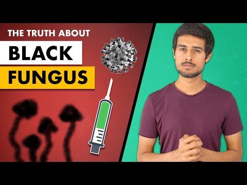 Black Fungus | White Fungus | Yellow Fungus |Symptoms & Treatment | Dhruv Rathee