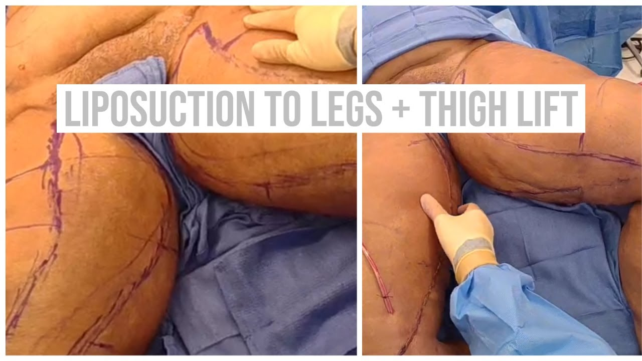 Dr Repta Performs Liposuction to the Legs and Abdomen + Thigh Lift