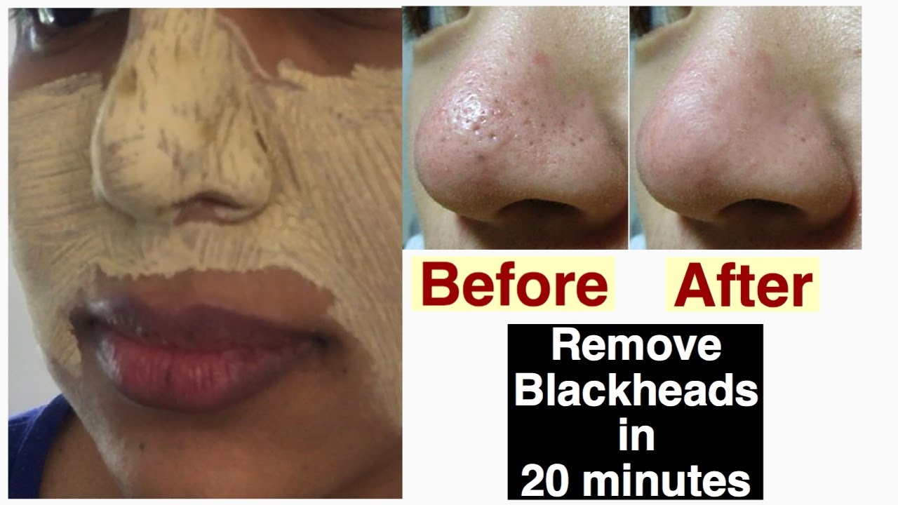 How to treat open pores and blackheads