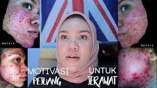 Gambar cover Motivasi Buat Pejuang Jerawat! YOU ARE BEAUTIFUL!!! | #MyAcnestory