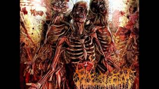 Fleshrot-Traumatic Reconfiguration (Full Album)