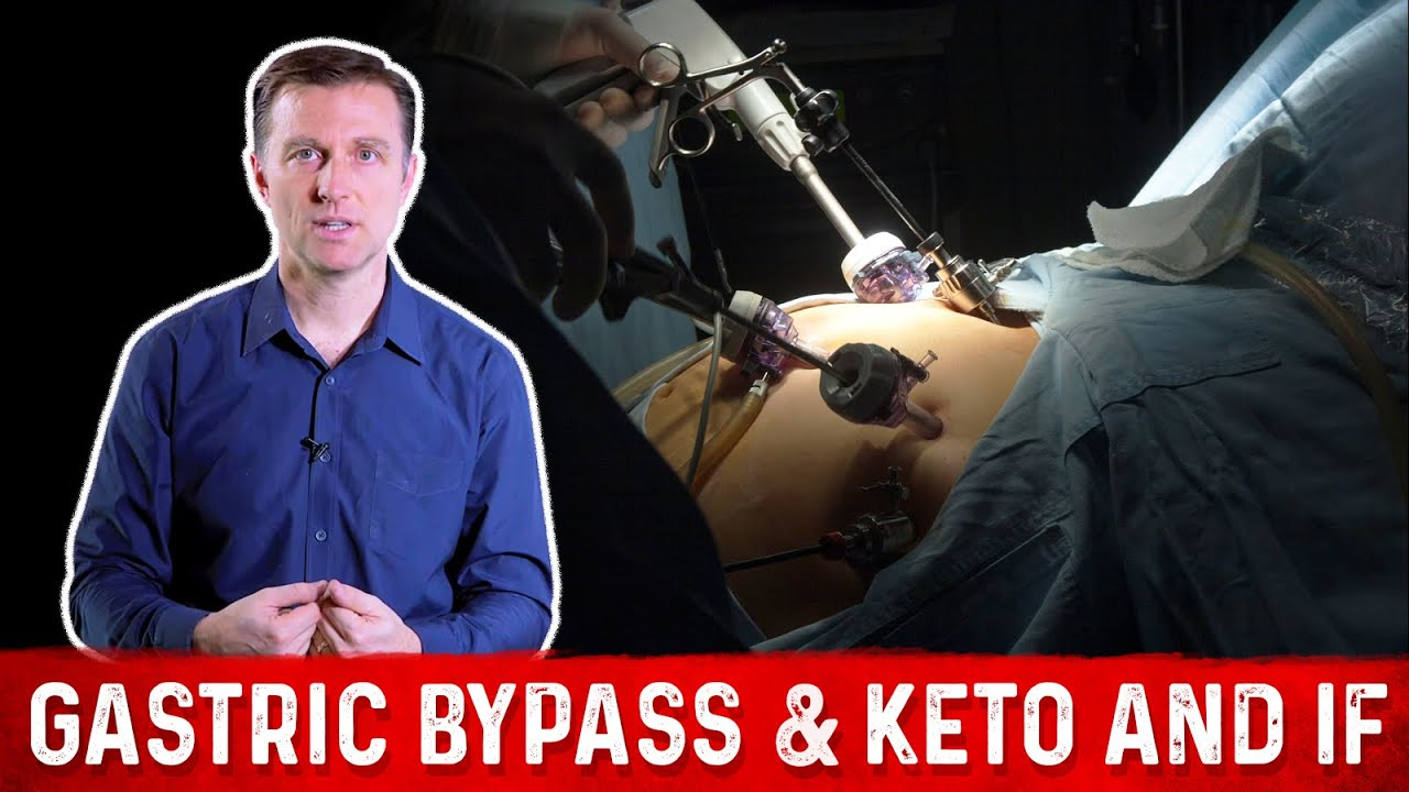 Gastric Bypass Keto And Intermittent Fasting Youtube