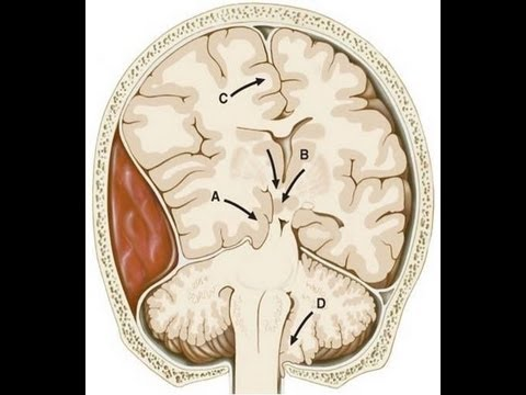Brain Injury-Dr. Ed Park's Podcast 38
