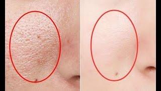 不管男女「皮膚這樣」就是有蟎蟲,很多人不知道,教你一招,去蟎蟲更健康 thumbnail