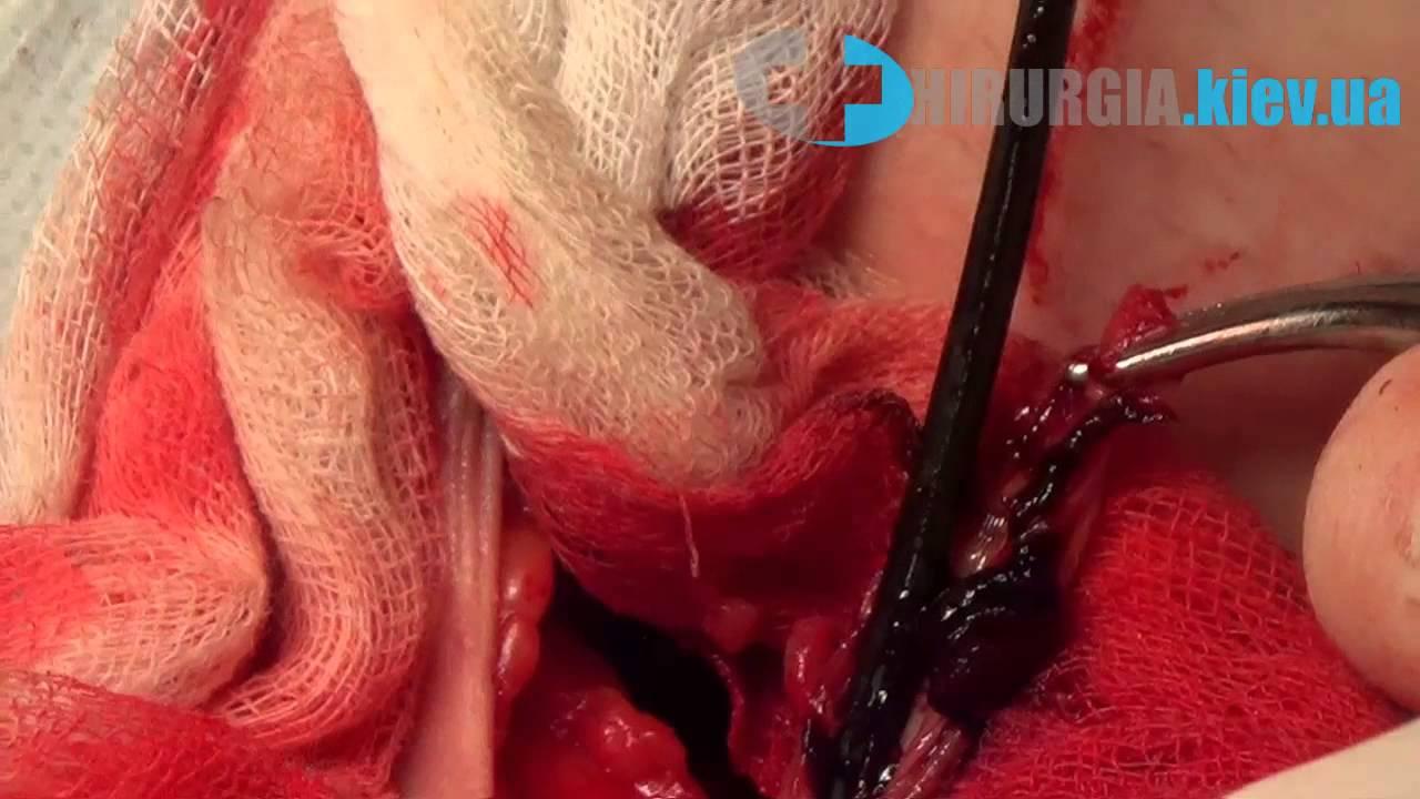 Гарантия на лечение варикоза - Клиника Константа