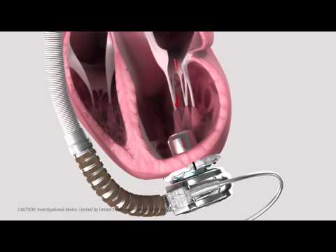 heartware ventricular assist system animated demonstration youtube