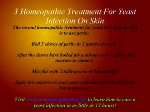 dog yeast infection skin homeopathic treatment for yeast infection on skin youtube