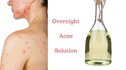 hqdefault - Does Distilled White Vinegar Help Acne