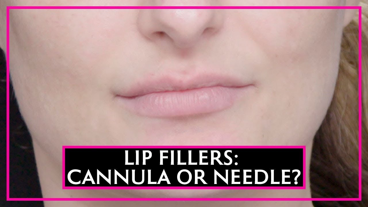 Lip Fillers: A Needle Or A Cannula?