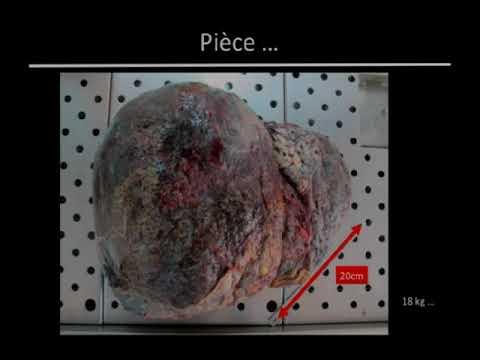 Transplantation hépatique pour tumeurs bénignes du foie - YouTube