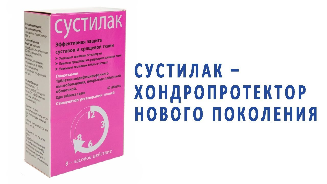 Эффективность препаратов при артрозе на основе хондроитина и глюкозамина