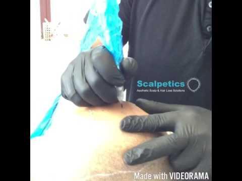 Bald No More!  Scalp Micropigmentation Head Tattoo by Carl J Barton at Scalpetics