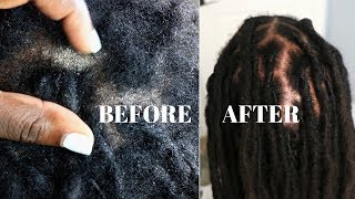 How To REMOVE Flakes and Dandruff |  Extremely DRY SCALP Psoriasis & Dermatitis