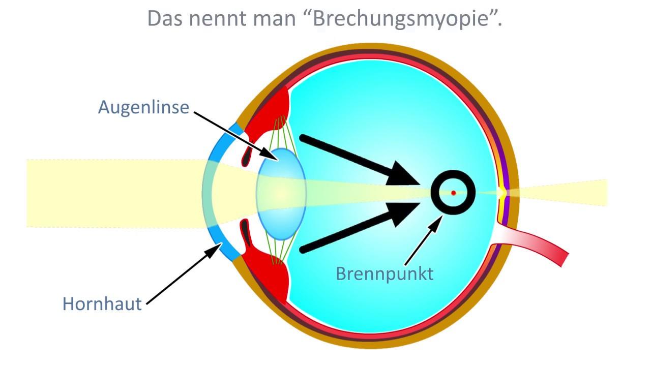 Kurzsichtigkeit (Myopie): Defintion, Ursachen und Wirkung