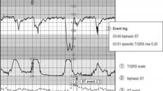 19: Intrapartum Fetal Monitoring - Part 3