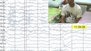 Пример видеозаписи электроэнцефалографа БИОЛА