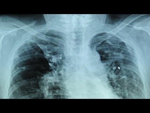Принудительное лечение туберкулеза. Утро с Губернией. GuberniaTV