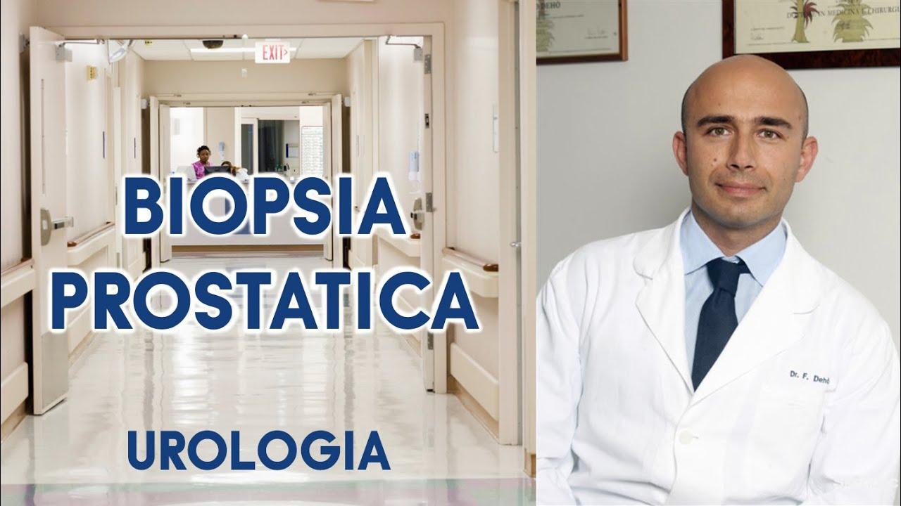 come funziona la biopsia alla prostata