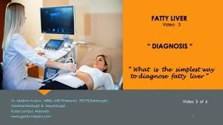 FATTY LIVER - Diagnosis