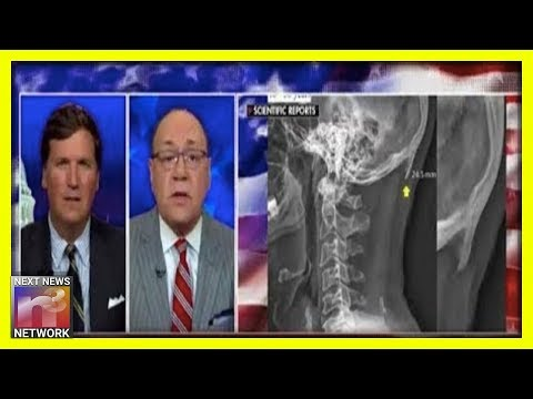 DO YOU HAVE IT? Tucker Carlson Brings Dr. Siegel On The Show and Reveals HORNS Growing In Our Heads