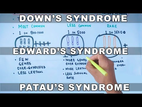 Trisomy | Down's vs Edward's vs Patau's Syndrome