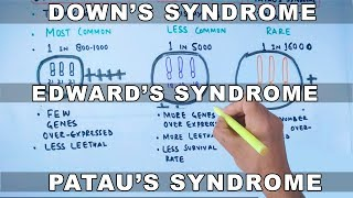 Download Video Trisomy | Down's vs Edward's vs Patau's Syndrome MP3 3GP MP4