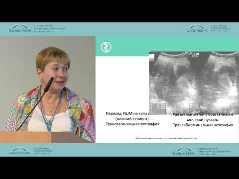 Рак шейки матки - диагностика: УЗИ, МРТ…