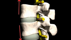 Spinal Traction For Neck & Back Pain