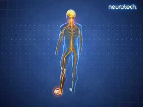 Tens-Geräte im Vergleich: Gezielte Impulse für Muskeln