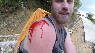 My Motorcycle Crash in the Philippines