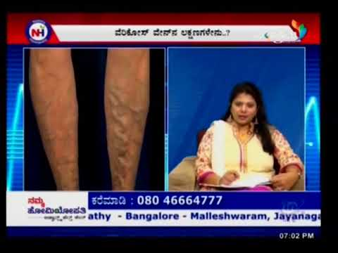 Namma Homeopathy Dr Manjunath Varicose veins