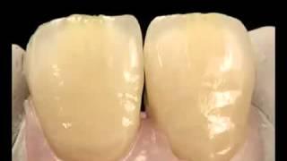 Металлокерамическая коронка(Полный процесс установки и создания металлокерамических коронок на больные зубы., 2015-11-12T16:03:38.000Z)