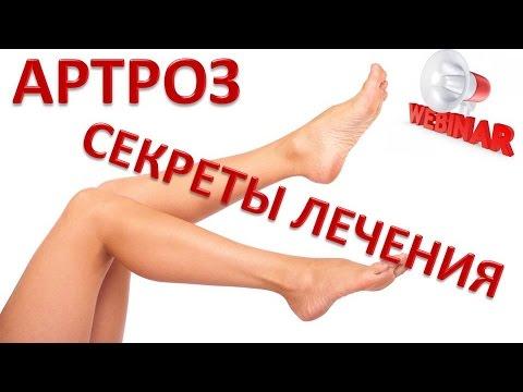 Посттравматический артроз локтевого сустава - симптомы и