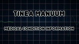 Tinea manuum (Medical Condition)