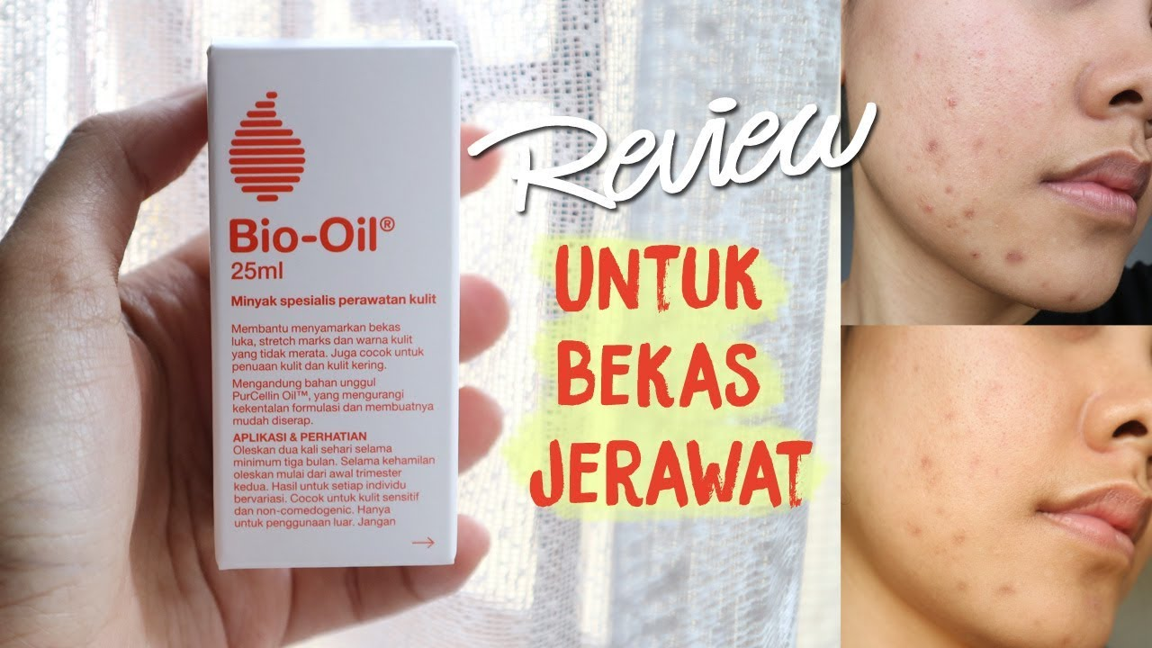 Mini Review Bio Oil Chit Chat Eng Subs Youtube