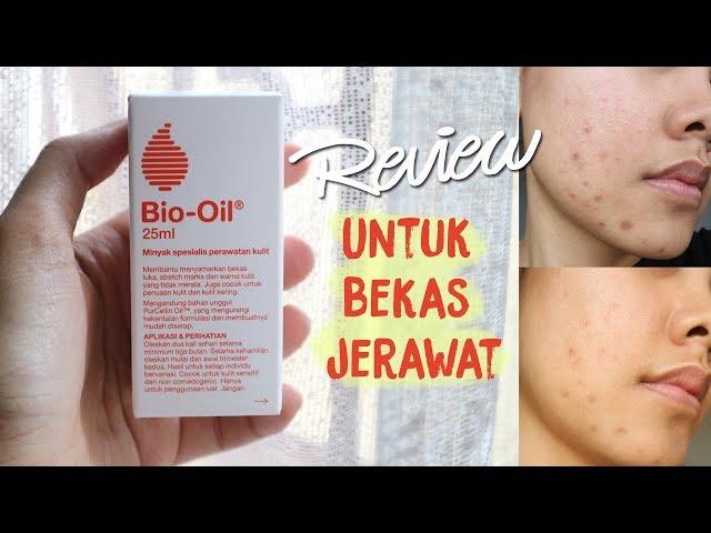 Bio Oil Untuk Bekas Jerawat First Impression Lia Harahap