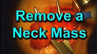 How To Pluck A Mass (Lymph Node) Out Of Someone