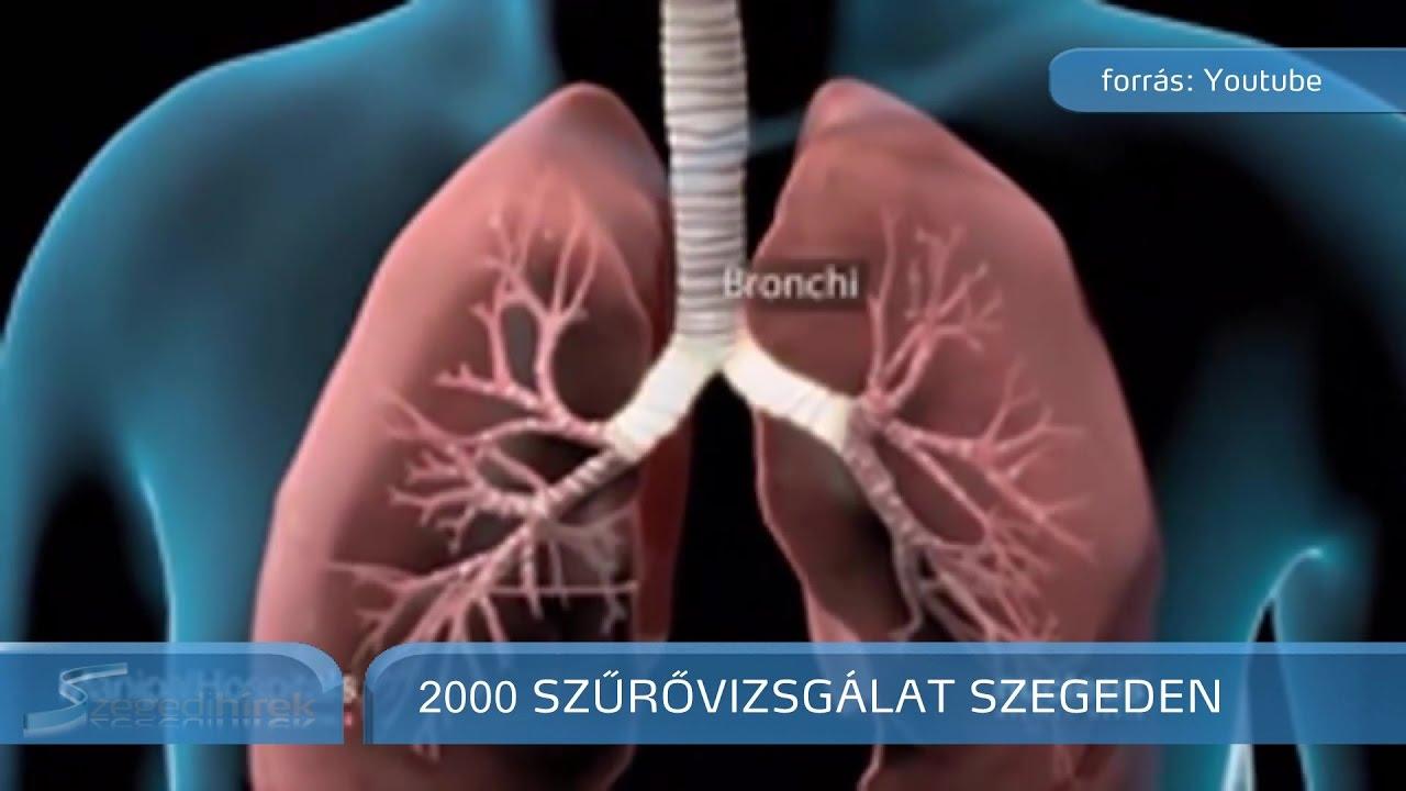 rák genetikai kapcsolata)