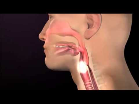 Tracheotomy video - Video of normal airways & swallowing mechanism