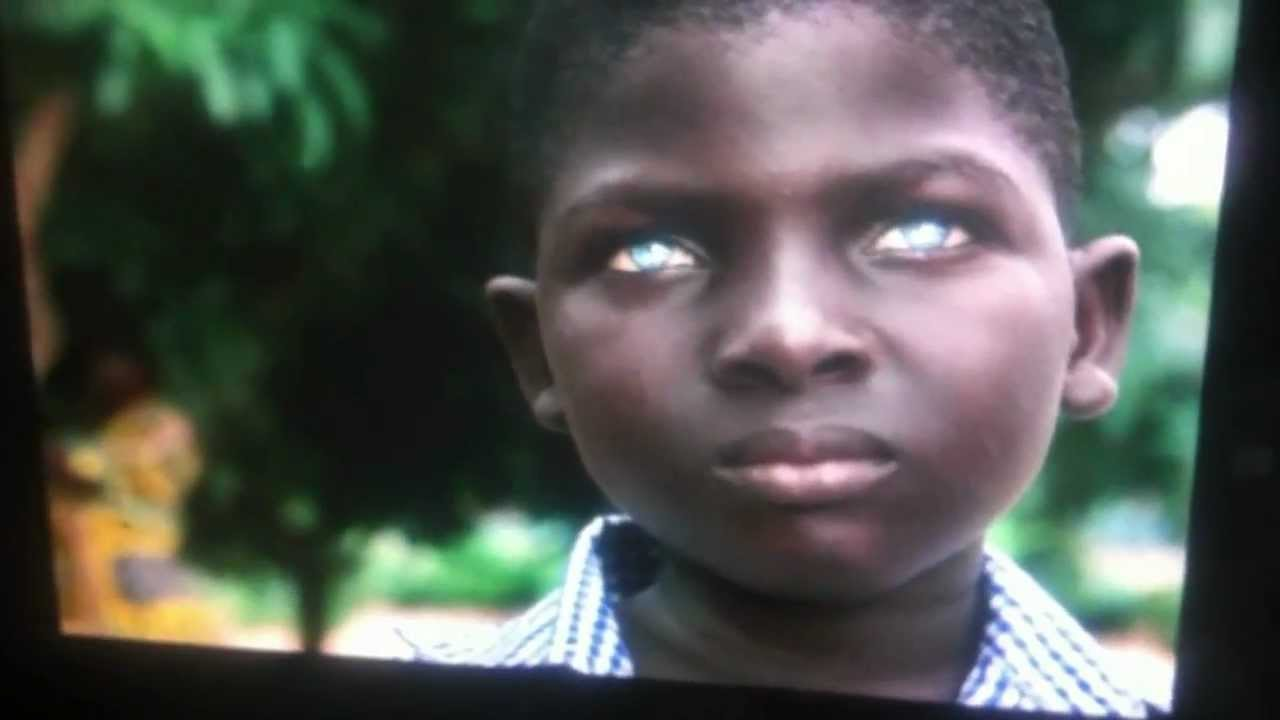 jeune africain noir avec des yeux bleus tres rare youtube. Black Bedroom Furniture Sets. Home Design Ideas