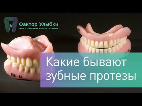Зубные протезы - какие протезы бывают и какие протезы лучше выбрать?