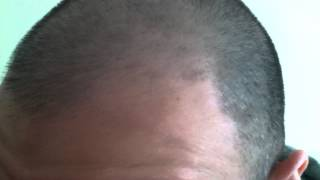 Hair Growth Experiment Using Rogaine Minoxidil 5% Day 48