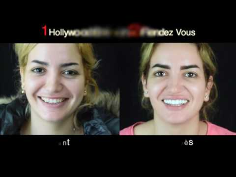 Un sourire de star en deux rendez-vous seulement / New Smile Casablanca